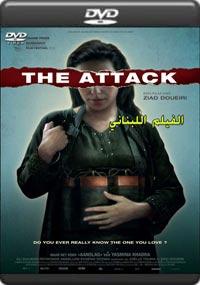The Attack [A-580]